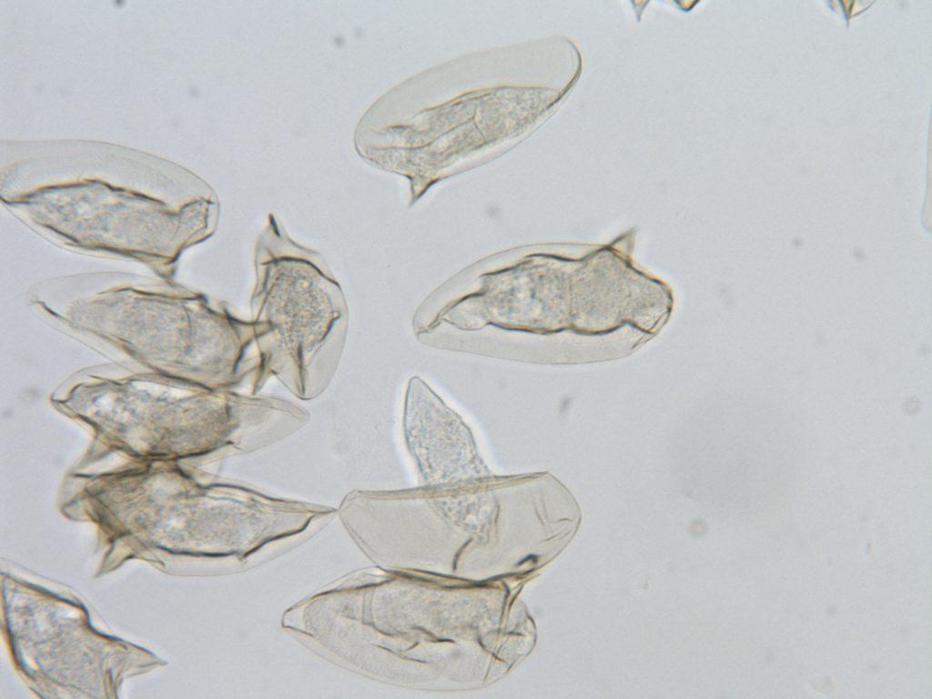 Oeufs de Schistosomes